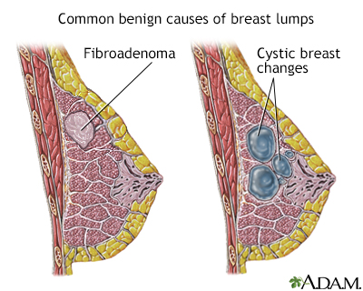 lumps in breast when breastfeeding