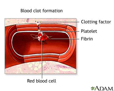 Hepatic vein obstruction (Budd-Chiari)