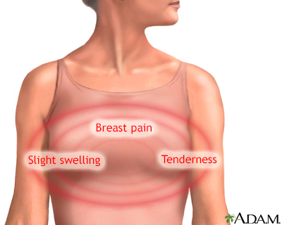 Tender breast meaning