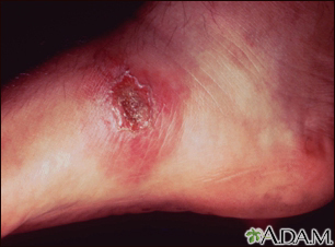 Leishmania panamensis on the foot