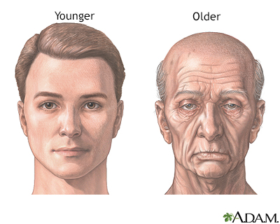 Facial changes with aging