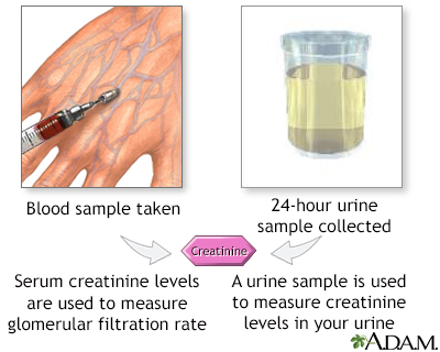 Creatinine blood test