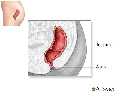 Define anal fissure