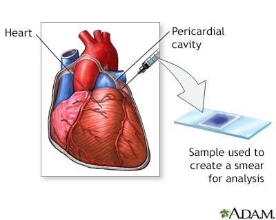 Pericardial fluid Gram stain