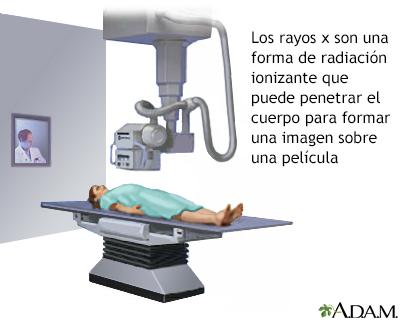 Rayos x definicion