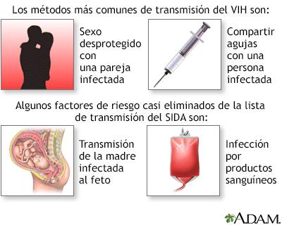 Causas del sida