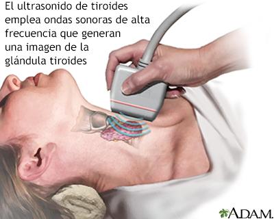 Ecografía de la tiroides