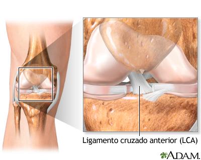 Lesión del ligamento cruzado anterior (LCA)