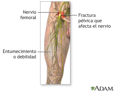 Disfunción del nervio femoral