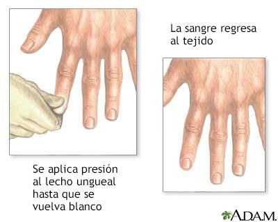Prueba de palidez ungueal para detectar la deshidratación en los signos y síntomas del dengue