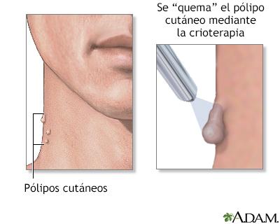 papiloma fibroepitelial benigno)